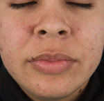after Demaclear peel