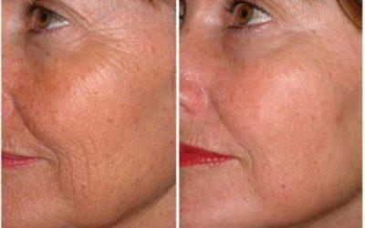 anti aging microneedlin g