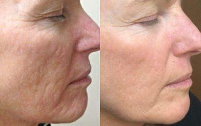 anti aging microneedling 2
