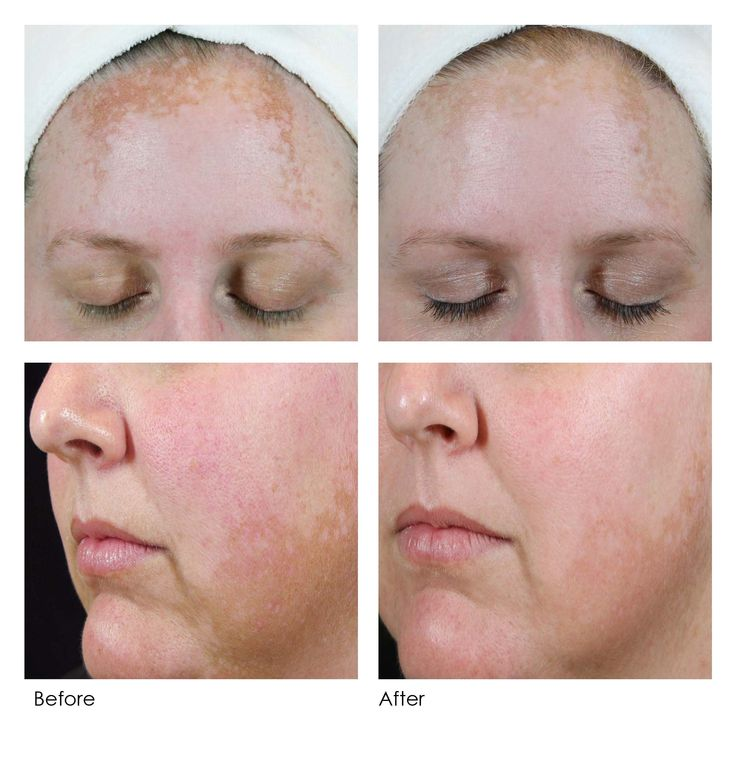 before after Dermaquest peels