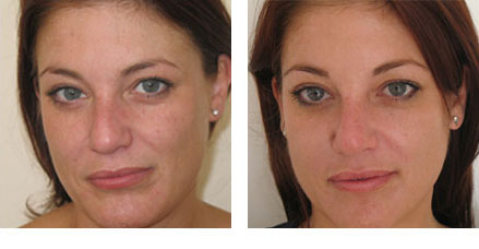 Dermaquest peels before after