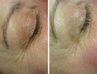 fine lines & wrinkles before & after LED mask treatment