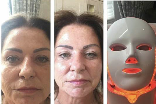 before & after the Neo Elegance Illumination LED face mask